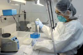 Dos bajas en Oftalmología aumentan la espera por consultas en el Mateu Orfila